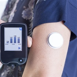 Image for Continuous Glucose Monitoring (CGM)